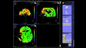 syngo-volume-perfusion-ct-neuro-video-screenshot-00070646~10