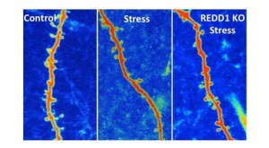New-Research-Reveals-How-to-Block-Stress-Damage