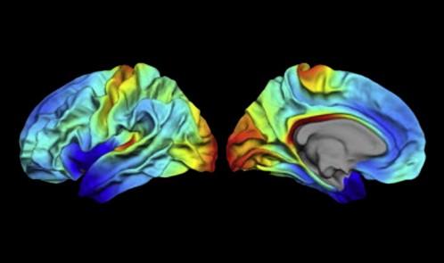 Brain-mapping-image-by-Håkon-Grydeland