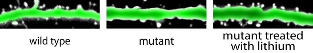 نورونهای موشهای جهش یافته و دارای بیماریهای روانپزشکی (تصویر وسط) از خارهای دندریتی (برآمدگی های سفید رنگ) کمتری نسبت به موشهای سالم (چپ) برخوردارند. درمان لیتیمی باعث شده تا در موشهای جهش یافته، رشته ها به حالت عادی بازگردند
