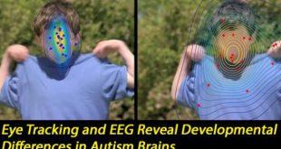 هر نقطه بیانگر موضعی خیره کننده برای هر کودک مشغول تماشای فیلم است. نقاط آبی در بالا بیانگر کودکان نوپایی است که بطور معمول در حال رشد هستند. نقاط قرمز بیانگر کودکان نوپای مبتلا به اختلالات طیف اوتیسم (ASD) است. در طی آزمایش، چهره دچار محو شدگی نشده است. اعتبار: دانشگاه ژنو