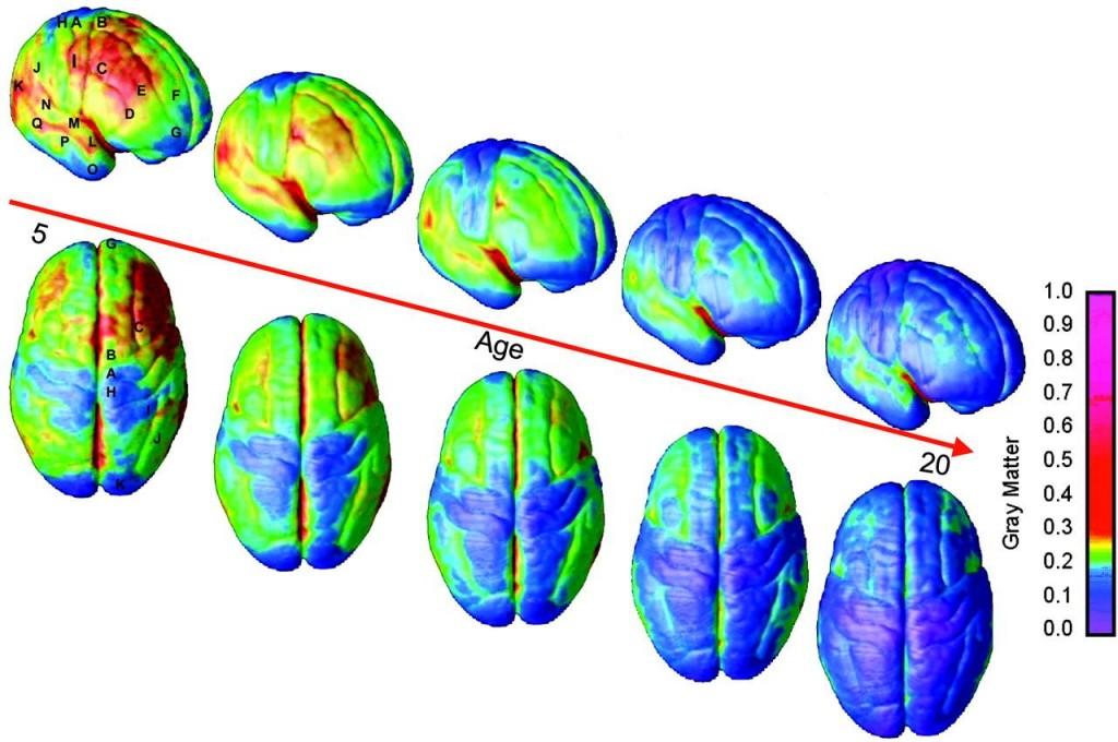 تغییر تراکم ماده خاکستری مغز را از سن 5 تا 20 سالگی در نواحی قشری مغز