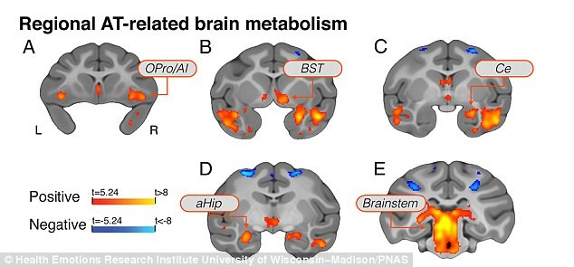 2A4795B200000578-3151227-By_closely_examining_how_individual_differences_in_brain_functio-a-21_1436201576965