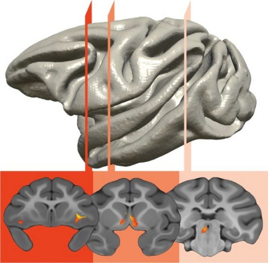 brain_circuit
