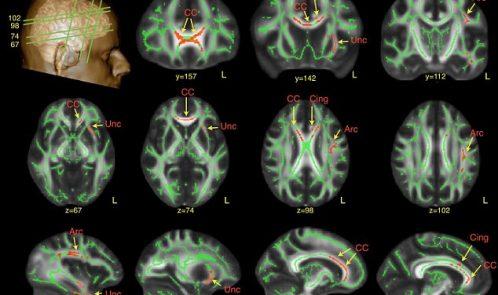 محققان از اسکنهای MRI برای مطالعه مغز بزرگسالان مبتلا به اتیسم استفاده نموده و دریافتند که تفاوتهای ویژه ای در نقاط کلیدی ماده سفید مغز این اشخاص، که درگیر با گفتار و تشخیص چهره می باشند، وجود دارد. نواحی قرمز رنگ در مناطق درخشان اسکنهای فوق اختلافات یافته شده را نشان می دهد.