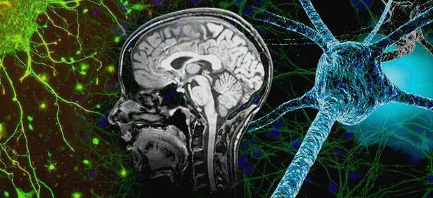 neurocollage2