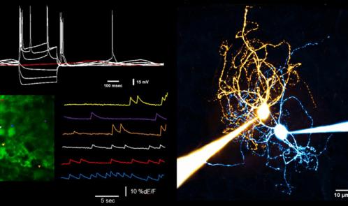 TIC-Electrophysiology