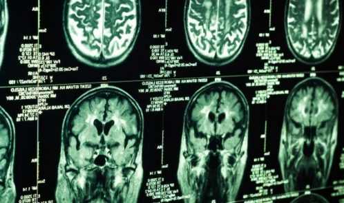 Brain-CT-702x336