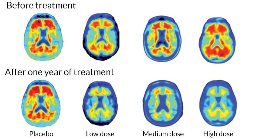 اسکن مغز تاثیر دوزهای متفاوت دارو را بعد از یک سال درمان نشان میدهد.