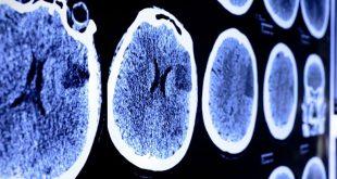 بهبود آثار سکته مغزی با داروی جدید
