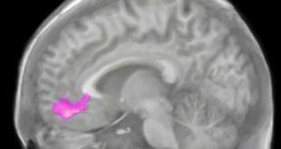 تصویربرداری مغزی