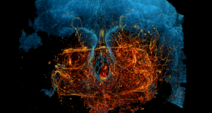 تکنیک جدید میکروسکوپی با اشعه ایکس می تواند به تسریع تلاش برای نقشه برداری از مدارهای عصبی و در نهایت خود مغز کمک کند